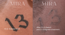 tattoo_before_and_after-(1)