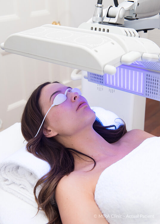 Ashleigh Jade using the blue light to help stop acne breakouts
