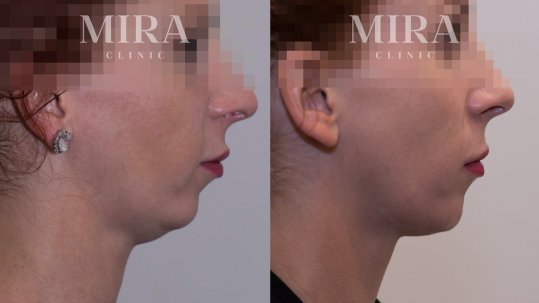 Actual MIRA client before and five weeks after one treatment with Belkyra