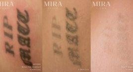 MIRA-BA-TattooRemoval-4
