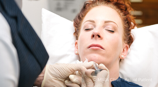 chin enhancement - chin fillers Perth - MIRA Clinic - image 002