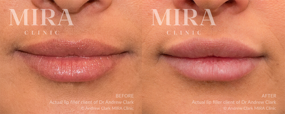 lip injections before and after - image 002