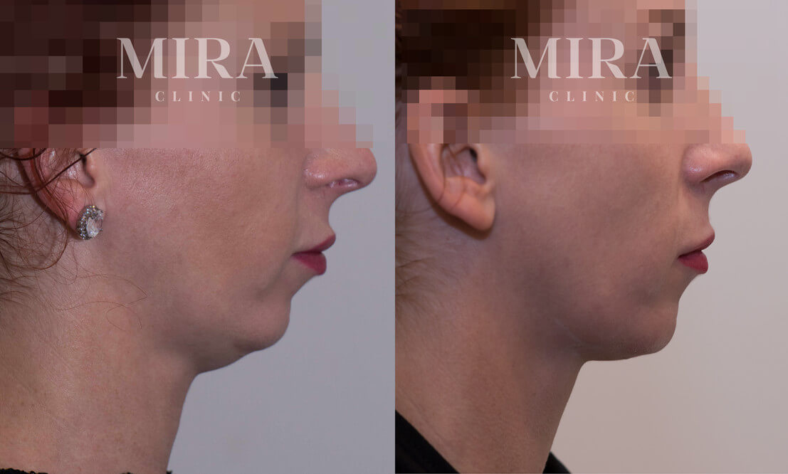 double chin - fat dissolving injections