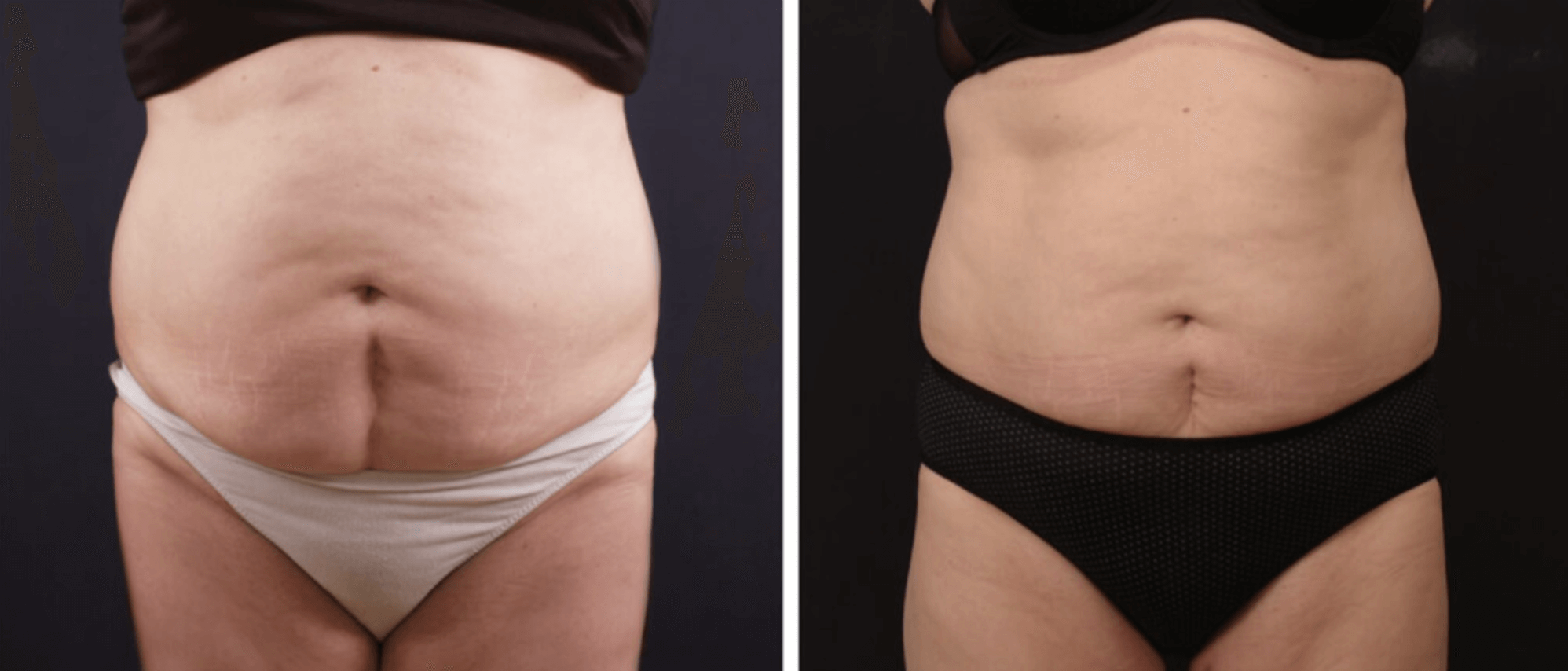 vanquish fat reduction before and after - MIRA Clinic Perth