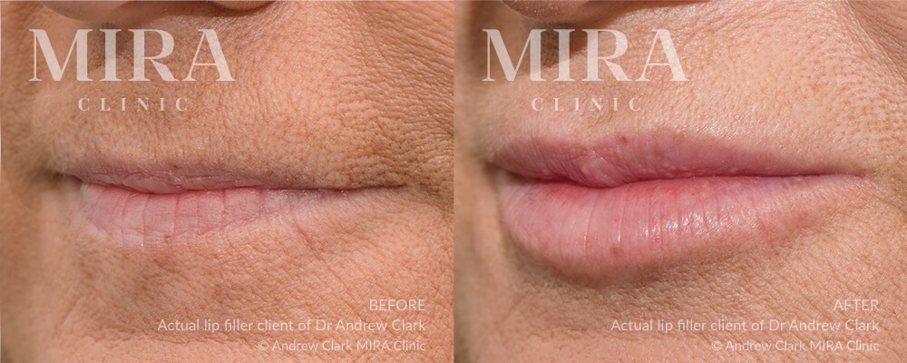 lip fillers - before and afters - real patient - image 004 - MIRA Clinic Perth