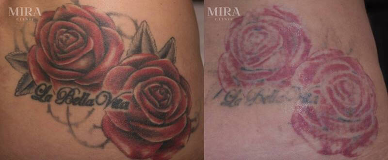 laser tattoo removal before and after - blog post image - MIRA Clinic Perth