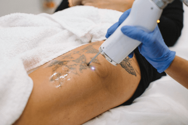 laser tattoo removal - MIRA Clinic Perth