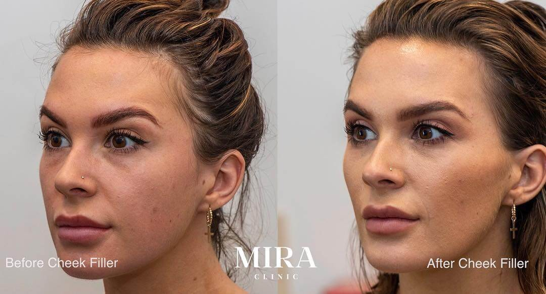 Cheek Fillers | Cheek Injections | Cheek Enhancement | MIRA
