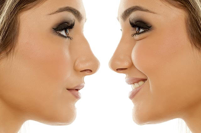 liquid nose job - non-surgical rhinoplasty