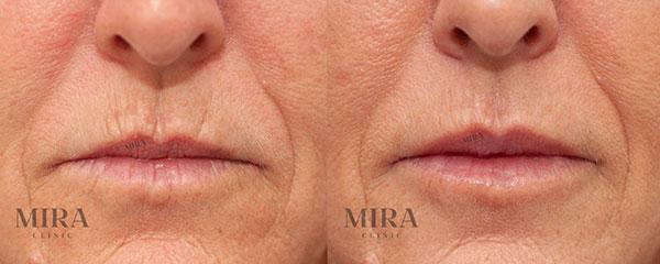 Lip Fillers (Injections) - Lip Enhancement Perth | MIRA Clinic