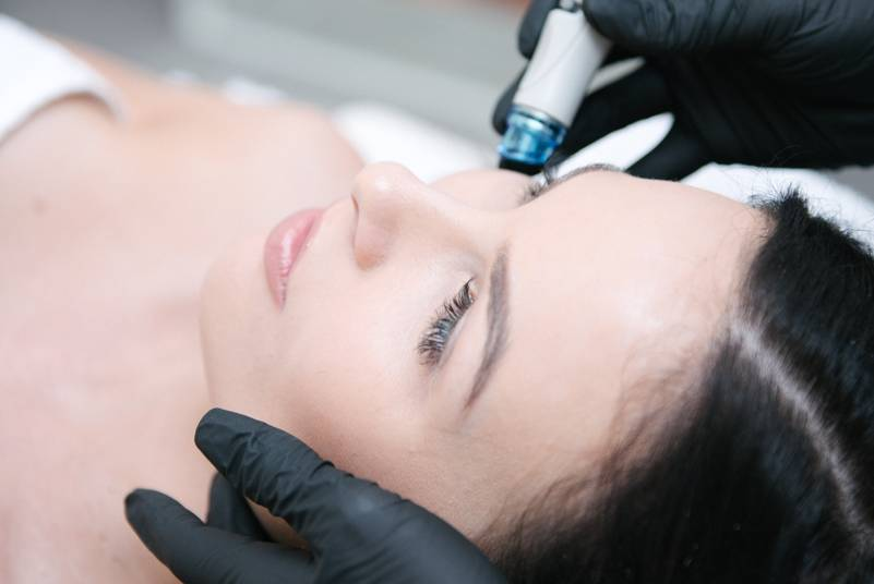 hydrafacial treatment at MIRA Clinic Perth - image 004
