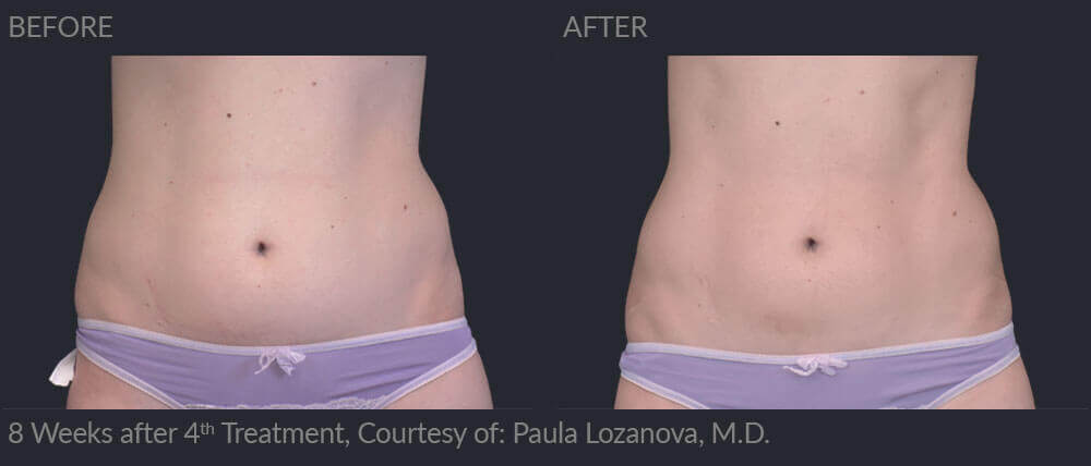 emsculpt before and after image 004 - MIRA Clinic Perth