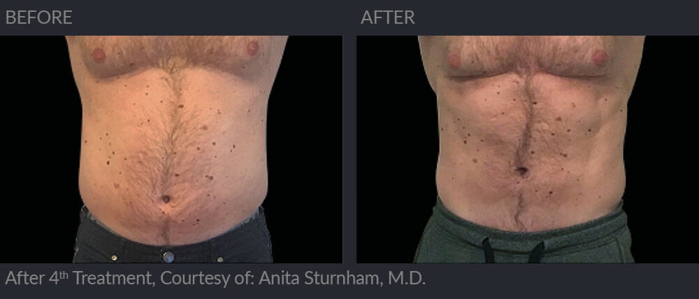 emsculpt before and after image 005 - MIRA Clinic Perth
