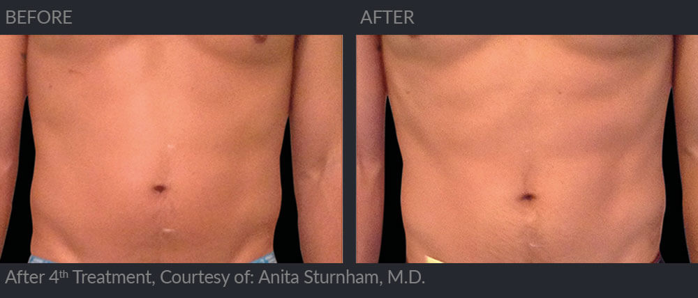 emsculpt before and after image 006 - MIRA Clinic Perth