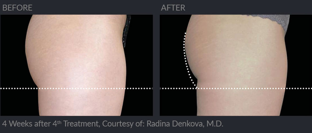 emsculpt before and after image 007 - MIRA Clinic Perth