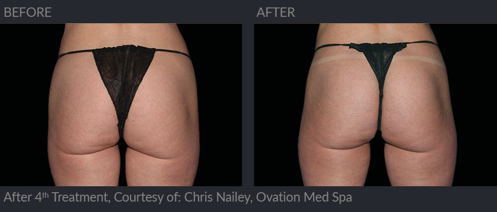 emsculpt before and after image 008 - MIRA Clinic Perth