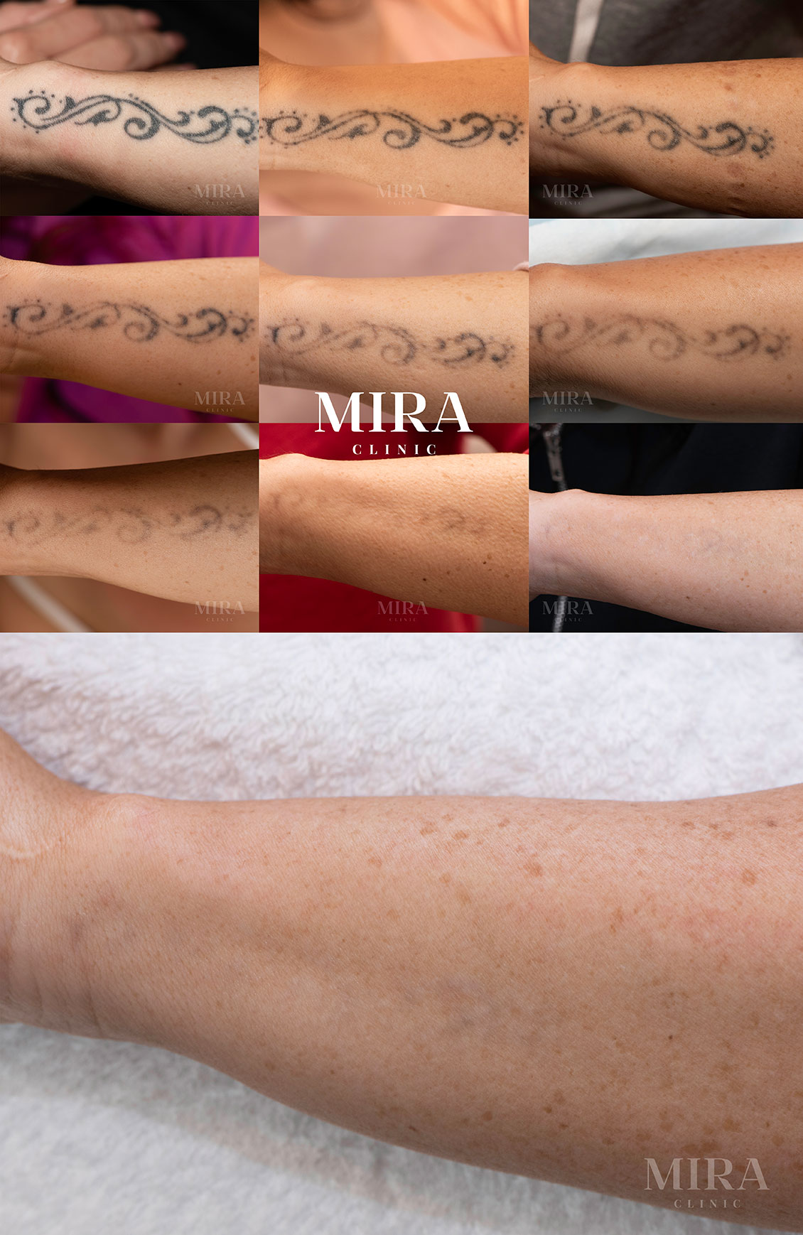 MIRA Clinic complete tattoo removal before and after nine separate treatments